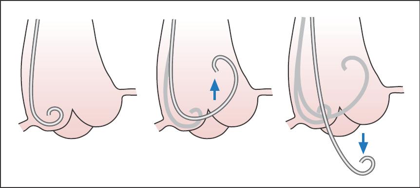 Catheterization Of The Cardiac Chambers Thoracic Key