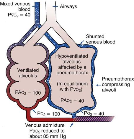 Pneumothorax Thoracic Key