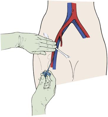 Arterial And Venous Access Thoracic Key