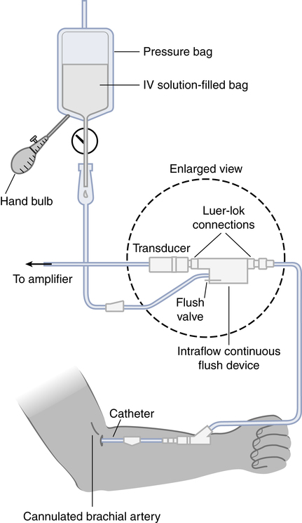 A Line Arterial Monitoring : Vascular pressure monitoring thoracic key