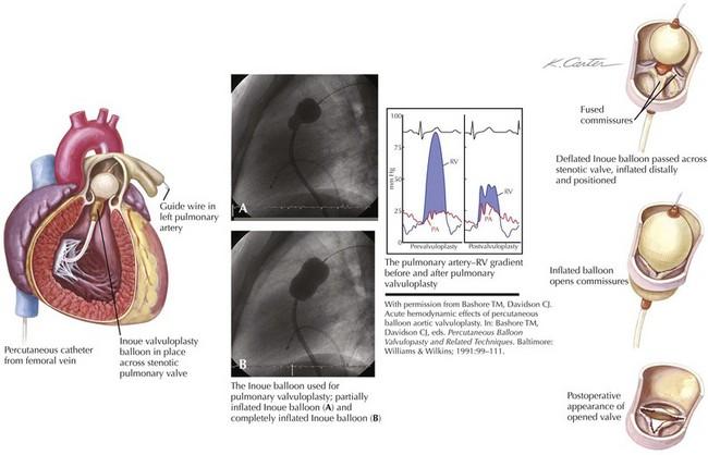 valvular heart disease guidelines 2016