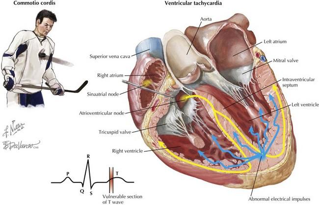Sudden Cardiac Death in Athletes | Thoracic Key