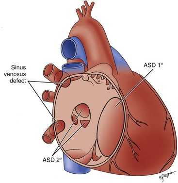 Hole in heart adult cause symptoms