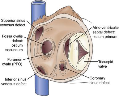 Adult atrial septal defect