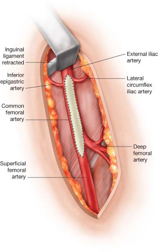 Combined Iliac Stenting and Fem-fem Bypass   Thoracic Key