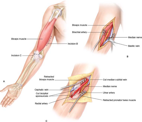 Distal Upper Extremity Revascularization Brachial To Radialulnar