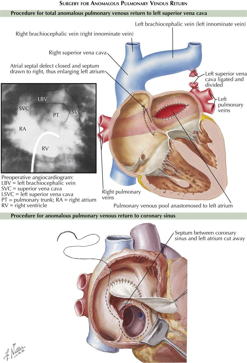 5 Congenital Heart Disease Thoracic Key