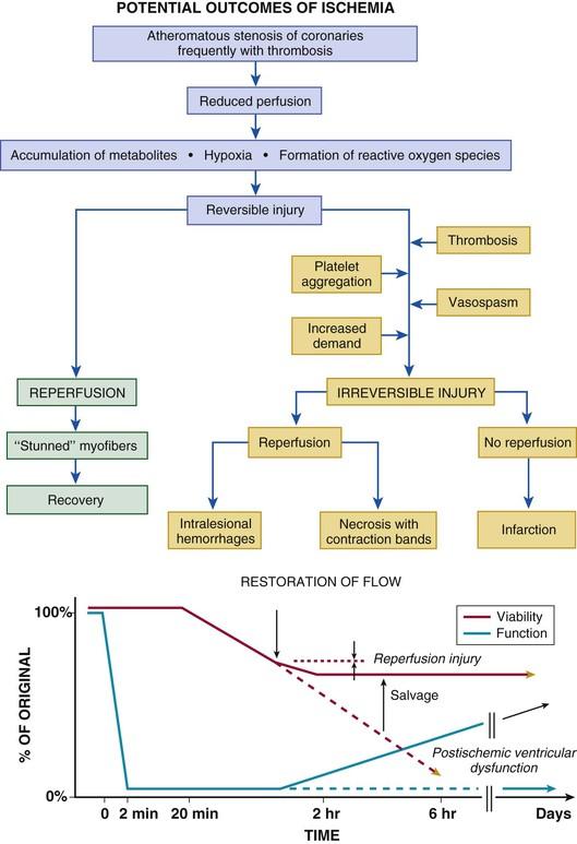 ST Elevation Myocardial Infarction Thoracic Key