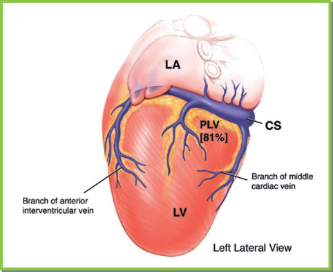 implanting and extracting cardiac devices: technique and avoiding, Cephalic Vein