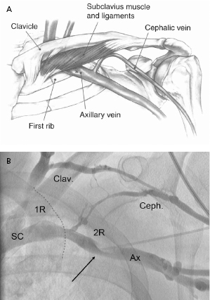 5: techniques of pacemaker implantation and removal | thoracic key, Cephalic Vein