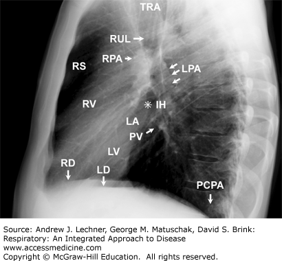 an analysis of radiologists interpreting radiographs Diagnostic imaging: policy for requesting and interpreting of radiographs by non-medical practitioners v2 1 august 2015 diagnostic imaging: requesting and interpreting of radiographs by.