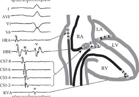 Mechanisms of hemolysis after mitral valve repair ...