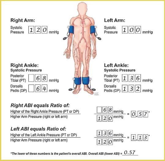 Peripheral Artery Disease   Thoracic Key