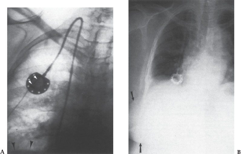 Tunneled Catheters and Chest Ports | Thoracic Key