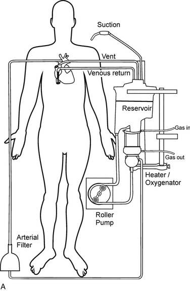 cardiopulmonary bypass  technique and pathophysiology