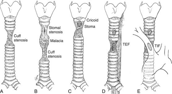 tracheal lesions