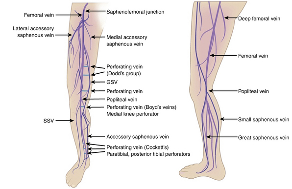 Varicose Veins Thoracic Key
