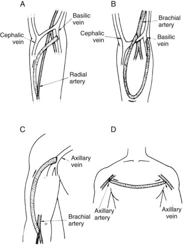 hemodialysis and vascular access | thoracic key, Cephalic Vein