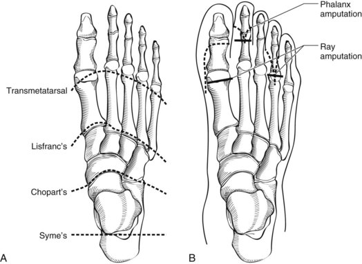 list of synonyms and antonyms of the word lisfranc amputation