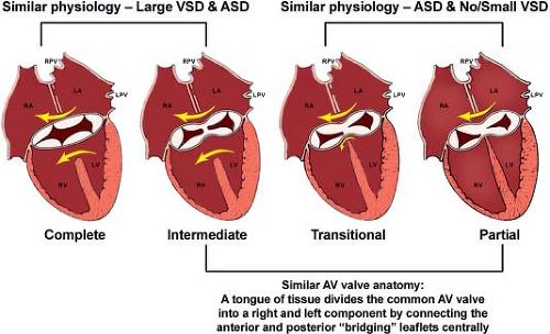 Atrioventricular septal defects thoracic key