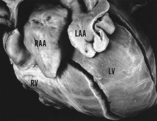 Cardiac Malpositions and Abnormalities of Atrial and Visceral Situs ...
