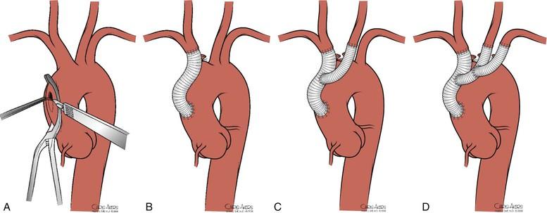 Brachiocephalic Artery | Thoracic Key