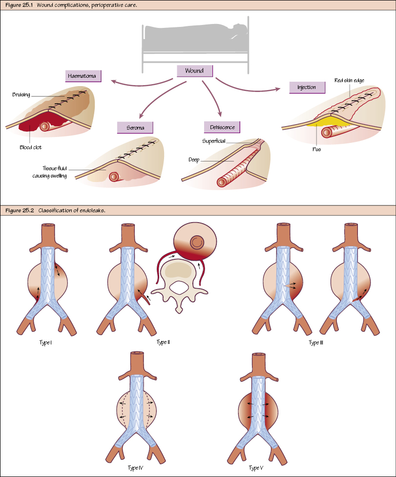 Post-Operative Complications and Management | Thoracic Key