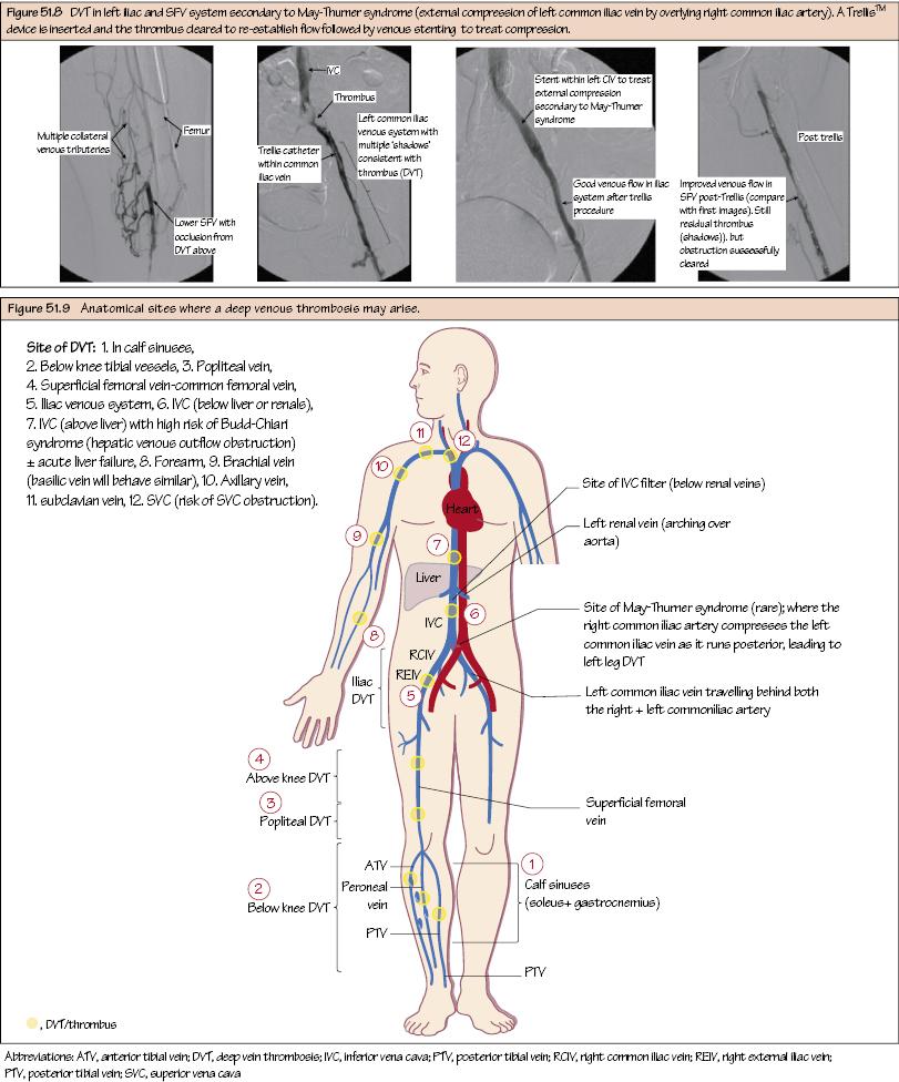 Deep Venous Thrombosis | Thoracic Key