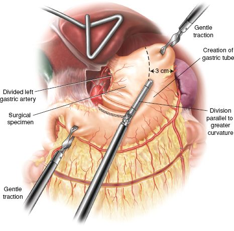 Minimally Invasive Ivor Lewis Esophagectomy