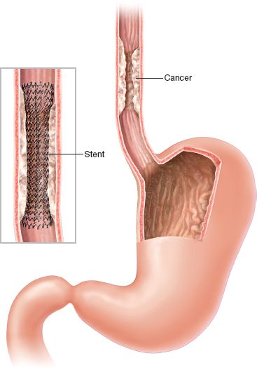 Esophageal Stents | Thoracic Key