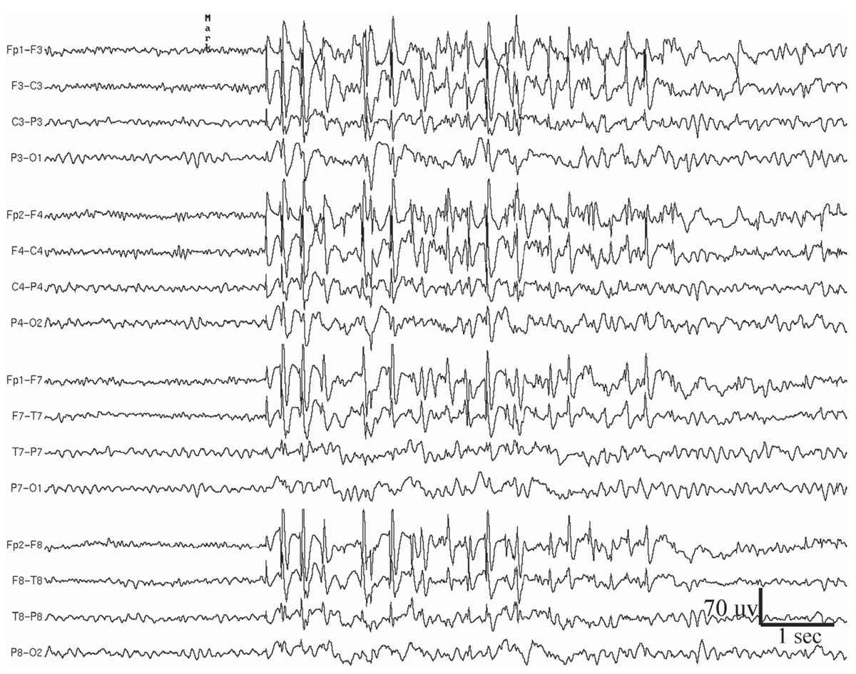 EEG in Adult Epilepsy | Thoracic Key