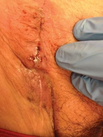 how to clean an infected incision