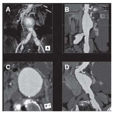 Management of abdominal aortic aneurysms thoracic key for Abdominal aortic aneurysm mural thrombus