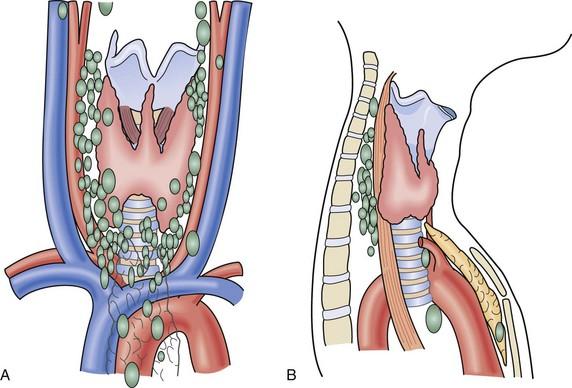 The Parathyroid Glands Thoracic Key