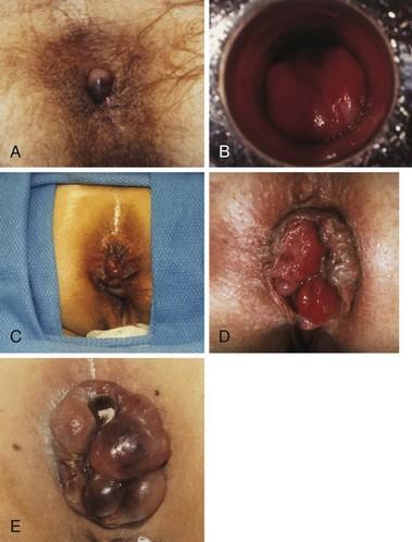 Think, anus colon edition neoplasms rectum second