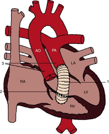 Percutaneous Pulmonary Valve Implantation Thoracic Key