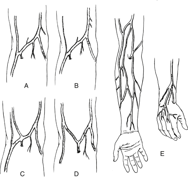 arm veins for lower extremity arterial reconstruction | thoracic key, Cephalic Vein