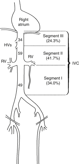 primary and secondary vena cava tumors