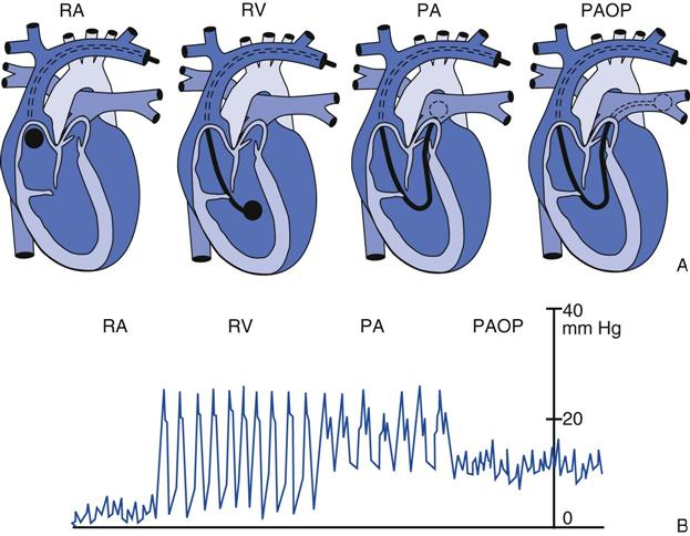 Rv Pressure Waveform Left Ventricular Pressure Lvp Millar