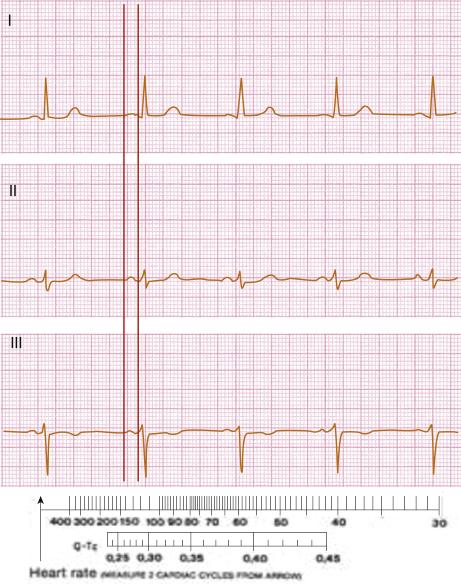 4: ECG Interpretation | Thoracic Key