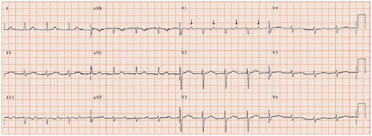 First degree atrioventricular block – long PR interval | Thoracic Key