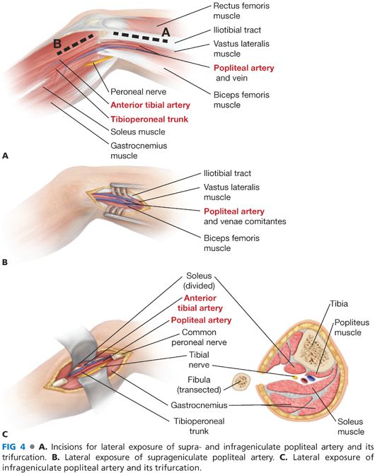 Surgical Exposure Of The Lower Extremity Arteries Thoracic Key