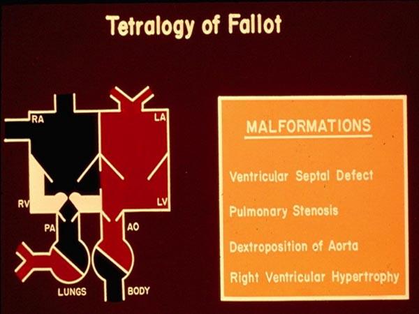 Tetralogy of Fallot | Thoracic Key