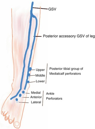Lower Limb Venous Anatomy Thoracic Key