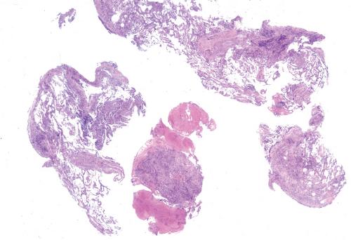 Pneumocystis jiroveci | Thoracic Key