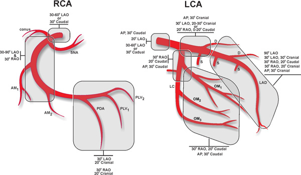 Coronary Angiogram Anatomy
