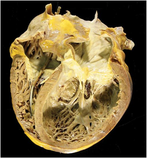 Cardiomyopathy and Myocarditis | Thoracic Key