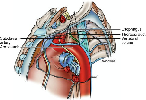 Thoracic Duct Injuries   Thoracic Key