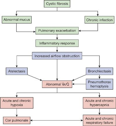 Cystic Fibrosis Thoracic Key