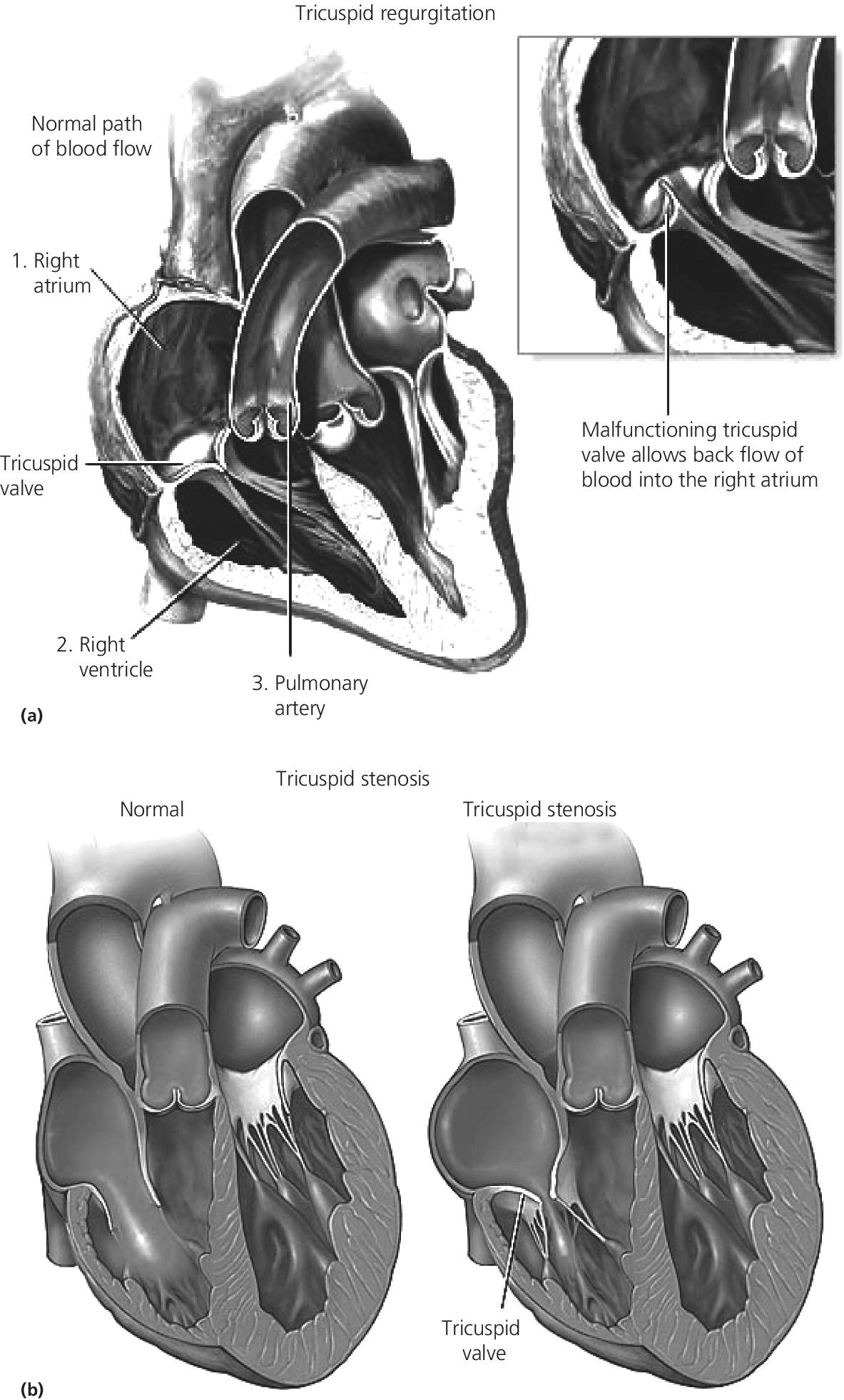 Top: Cross section of the heart with tricuspid regurgitation, with inset of the malfunctioning tricuspid valve. Bottom: Cross sections of the normal heart (left) and heart with tricuspid stenosis (right).